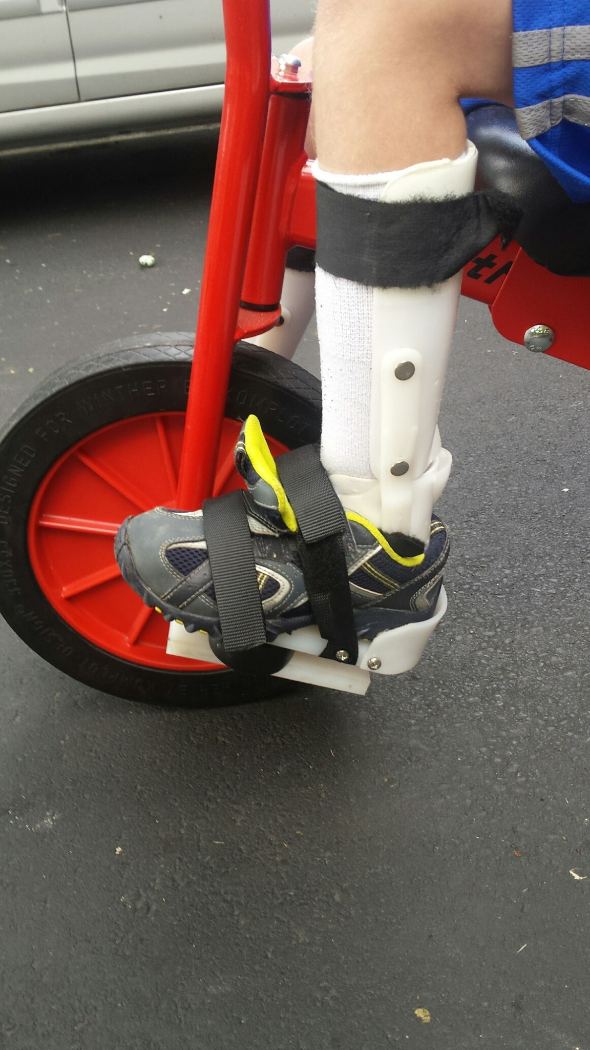 Special needs adapted front pedals of Winther tricycle